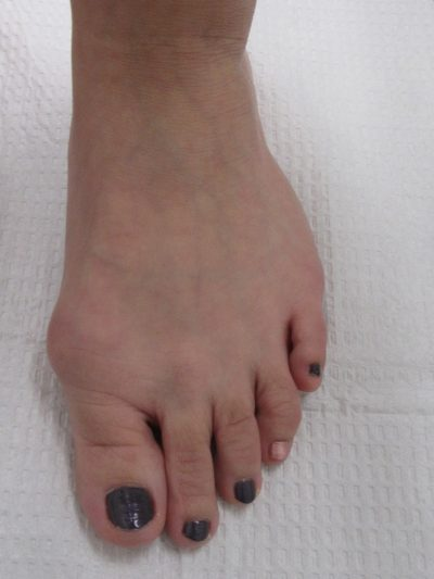Bunion Before Surgery.2