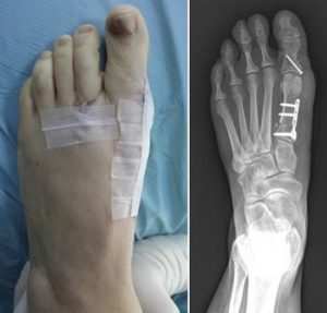 Bunion Surgery Is Brutal