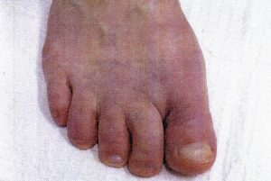 Minimally invasive bunion surgery after surgery 3